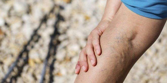 Krampfadern - Hilfe bei schwachen Venen