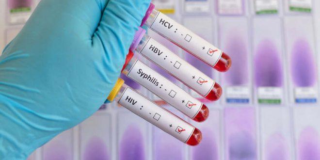 Mehr gegen HIV und Aids tun