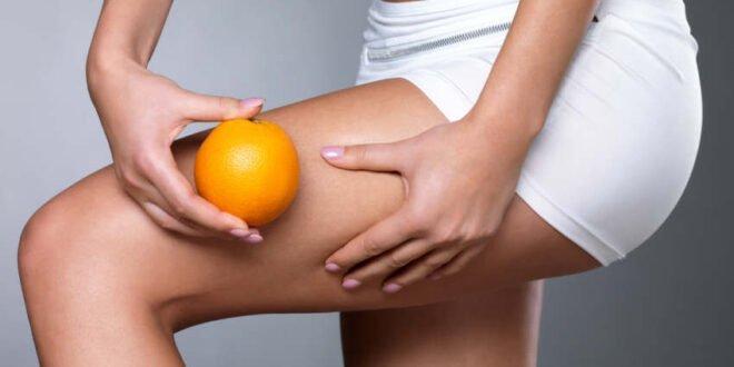 Cellulite - Tipps für straffes Bindegewebe