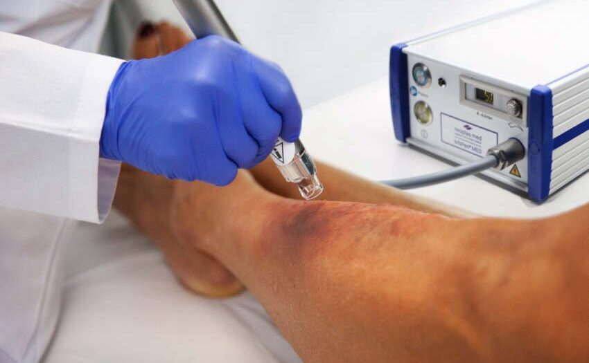 Kaltplasma Wundbehandlung - neoplas med